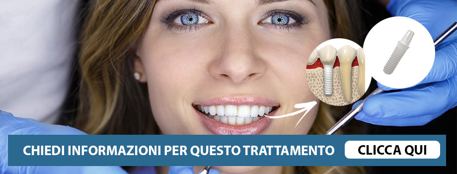Corone dentali in zirconia o porcellana latina